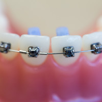 cabot_arkansas_Owen_Orthodontics-1-of-1-12-200x200 Damon Braces System