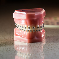 cabot_arkansas_Owen_Orthodontics-1-of-1-14-200x200 Damon Braces System