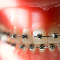 cabot_arkansas_Owen_Orthodontics-1-of-1-15-200x200 Damon Braces System