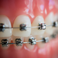 cabot_arkansas_Owen_Orthodontics-1-of-1-8-200x200 Damon Braces System