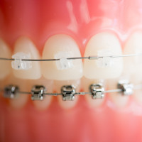 kim-1-of-1-10-200x200 Clear Braces