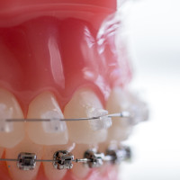 kim-1-of-1-6-1-200x200 Clear Braces