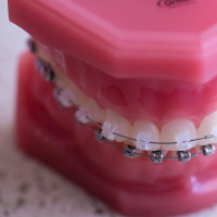 kim-1-of-1-7-200x200 Clear Braces