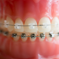 kim-1-of-1-9-200x200 Clear Braces