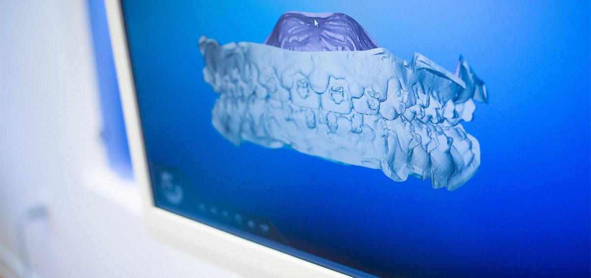 iTero-featured-blog-img-1200x565 iTero Intra Oral Digital Scanner